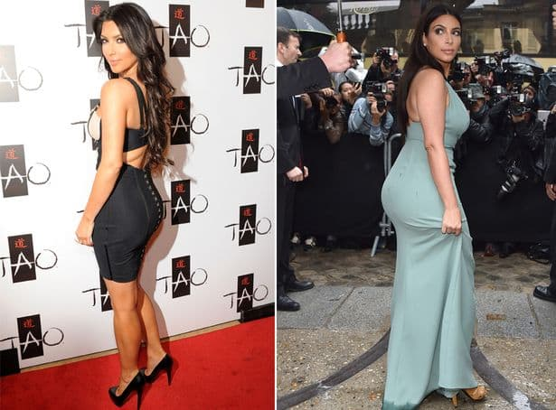 Kim K Plastic Ass Surgery Before After photo - 1