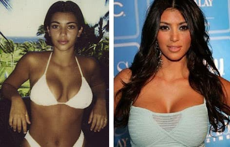 Kim Kardashian Before And After Pictures Of Plastic Surgery photo - 1