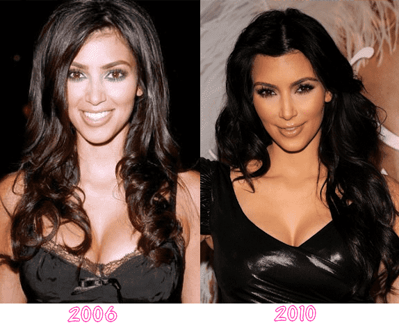 Kim Kardashian Before Any Plastic Surgery photo - 1