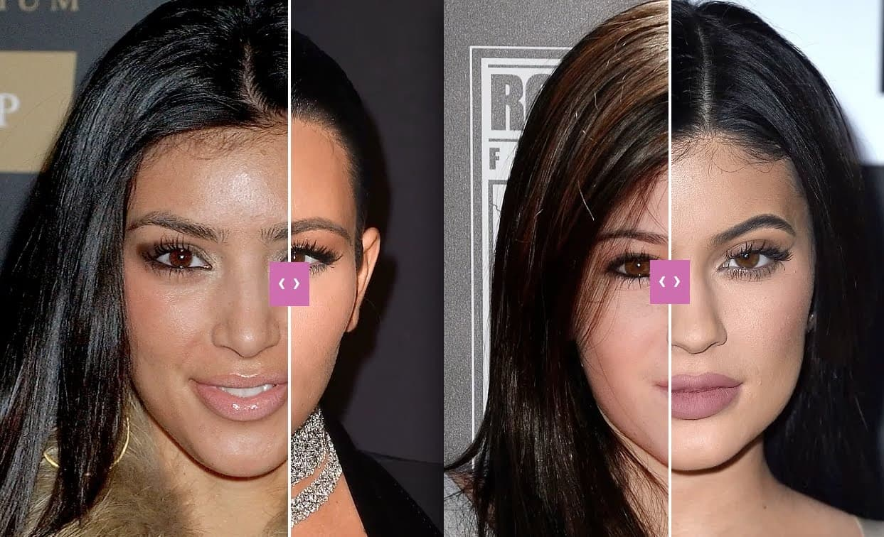 Kim Kardashian Plastic Surgery Pictures Before And After photo - 1