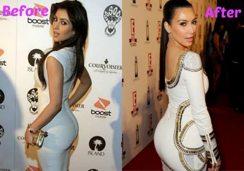 Kim Kardashians Butt Before Plastic Surgery photo - 1