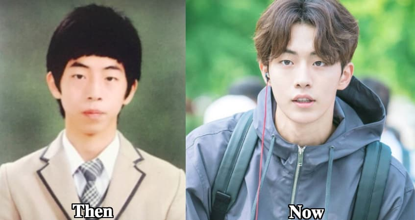 Kim Nam Joo Before And After Plastic Surgery photo - 1