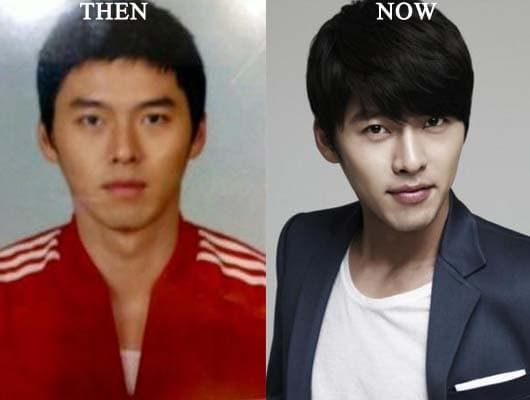 Kim Sung Bum Plastic Surgery Before And After photo - 1