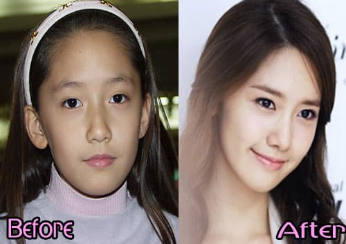 Kim Tae Hee Before Plastic Surgery photo - 1