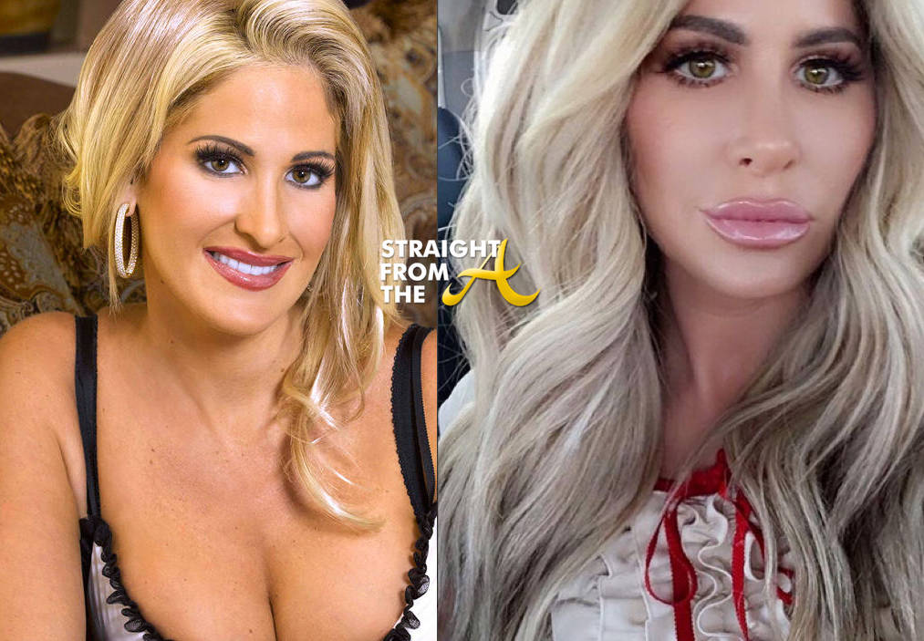 Kim Zolciak Plastic Surgery Before And After Face photo - 1