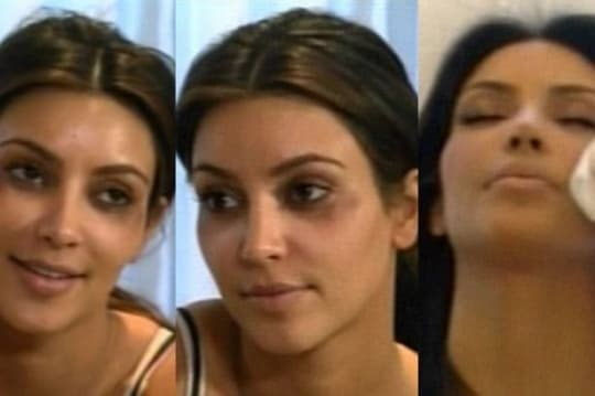 Kloe Kardashian Before And After Plastic Surgery photo - 1