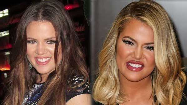 Kloe Kardashian Before Plastic Surgery photo - 1
