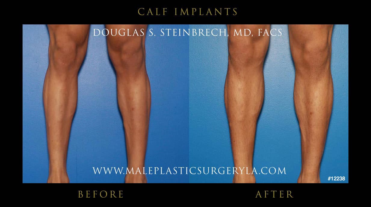 Knee Plastic Surgery Before After photo - 1