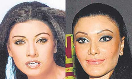Koena Mitra Before And After Plastic Surgery photo - 1