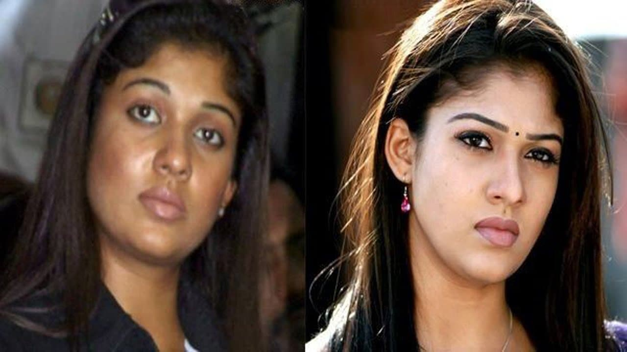 Kollywood Actress Plastic Surgery Before And After photo - 1