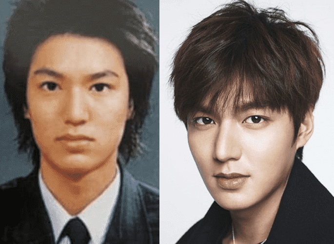Korean Actors Plastic Surgery Before And After photo - 1