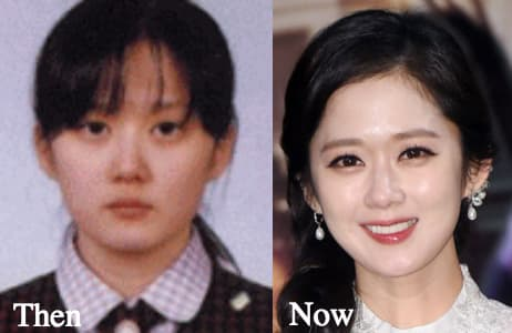 Korean Actress Before And After Plastic Surgery photo - 1