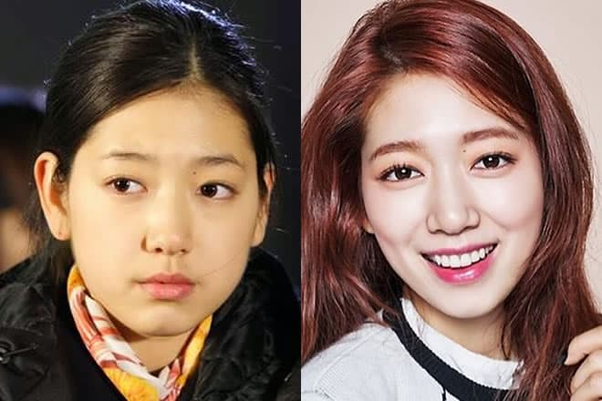 Korean Artist Plastic Surgery Before And After photo - 1
