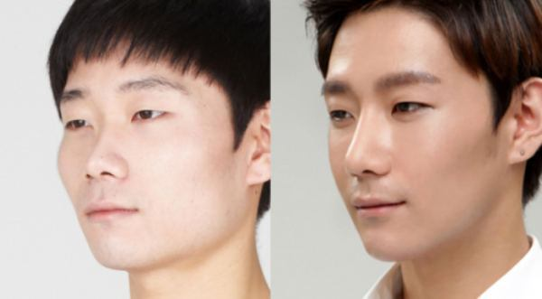 Korean Before After Plastic Surgery photo - 1