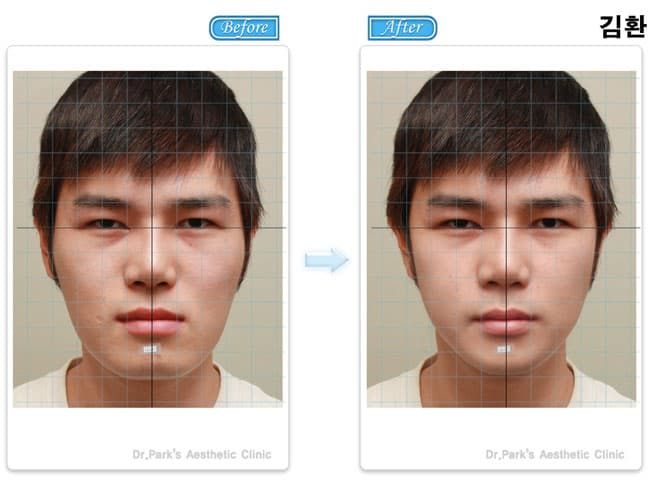 Korean Celebrity Plastic Surgery Before And After photo - 1
