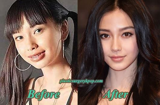 Korean Girl Group Plastic Surgery Before And After photo - 1