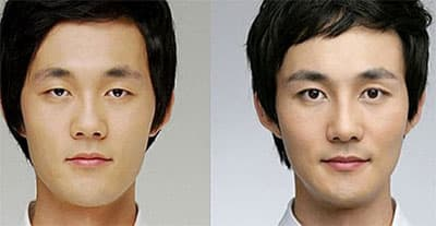 Korean Guy Plastic Surgery Before After photo - 1