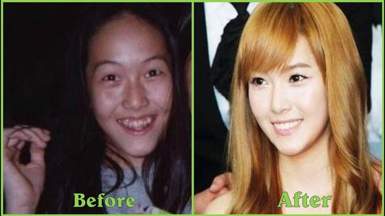 Korean Kpop Stars Before Plastic Surgery photo - 1