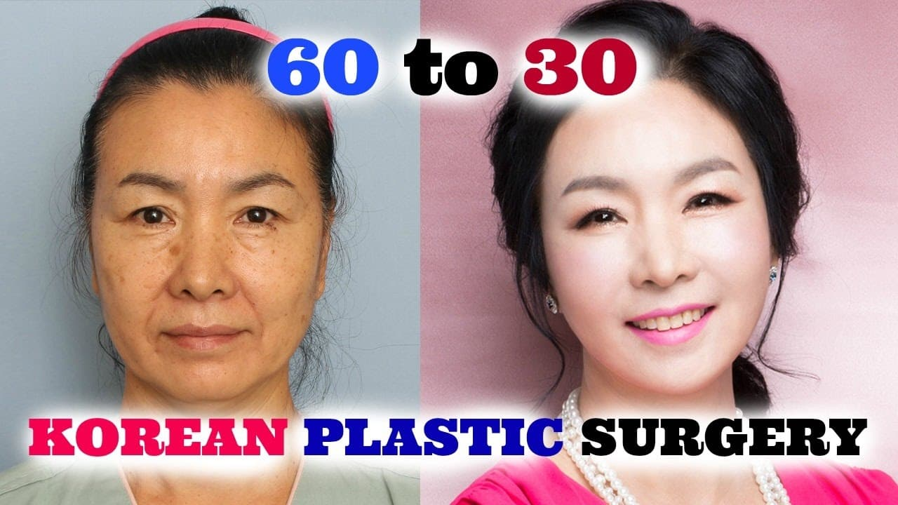 Korean Model Plastic Surgery Before And After photo - 1