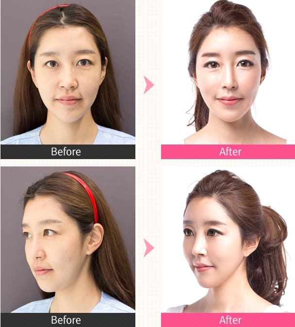 Korean Plastic Surgery Before After photo - 1