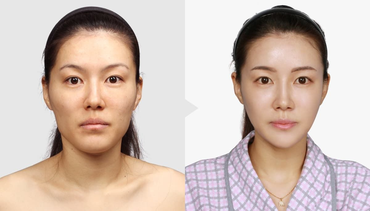 Korean Plastic Surgery Before And After Celebrities photo - 1