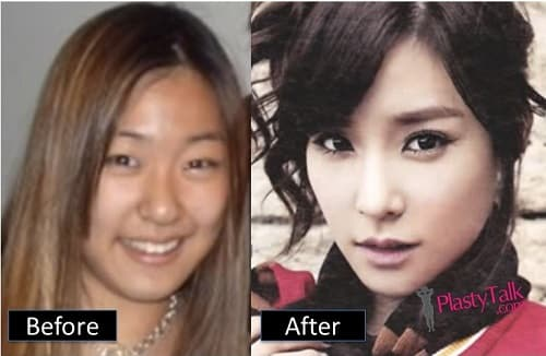 Korean Plastic Surgery Before And After Celebrity photo - 1