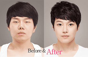 Korean Plastic Surgery Before And After Eyes photo - 1