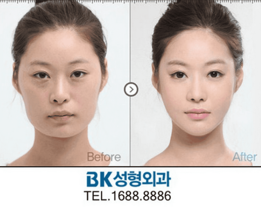 Korean Plastic Surgery Before And After Family photo - 1