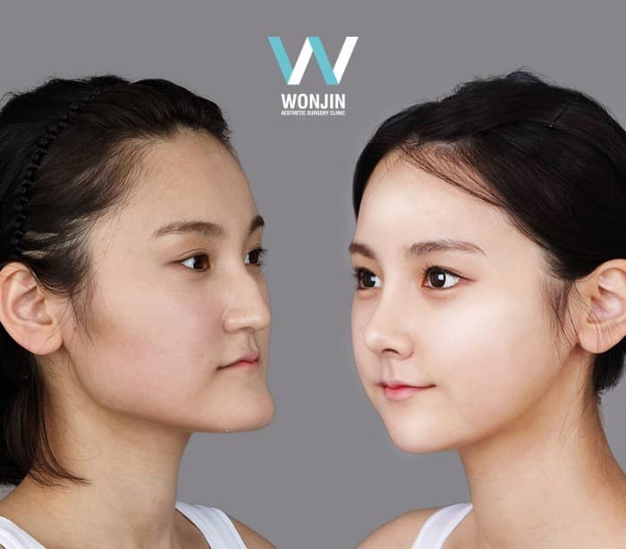 Korean Plastic Surgery Before And After Jaw photo - 1