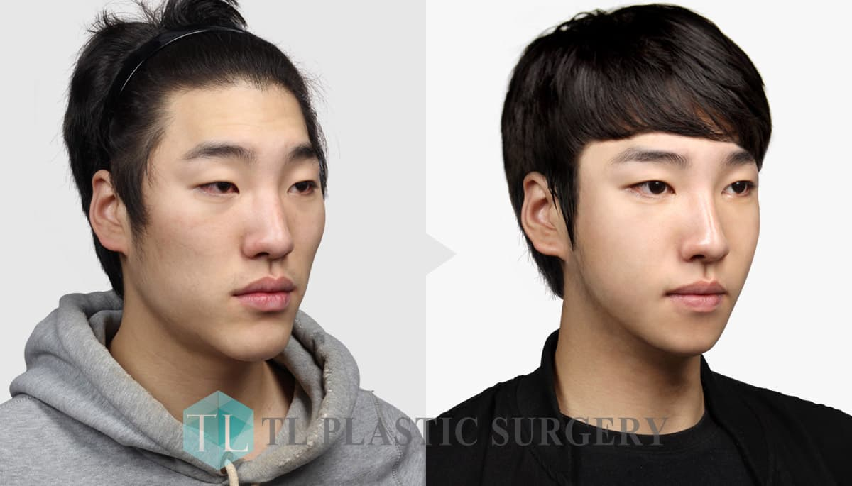 Korean Plastic Surgery Before And After Male photo - 1
