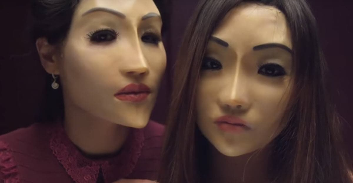 Korean Plastic Surgery Before And After Reddit photo - 1