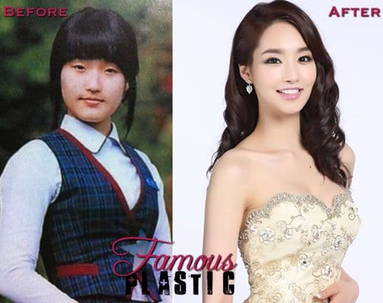 Korean Plastic Surgery Famous Before And After photo - 1