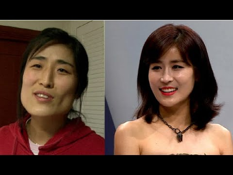 Korean Plastic Surgery Gone Wrong Before And After photo - 1