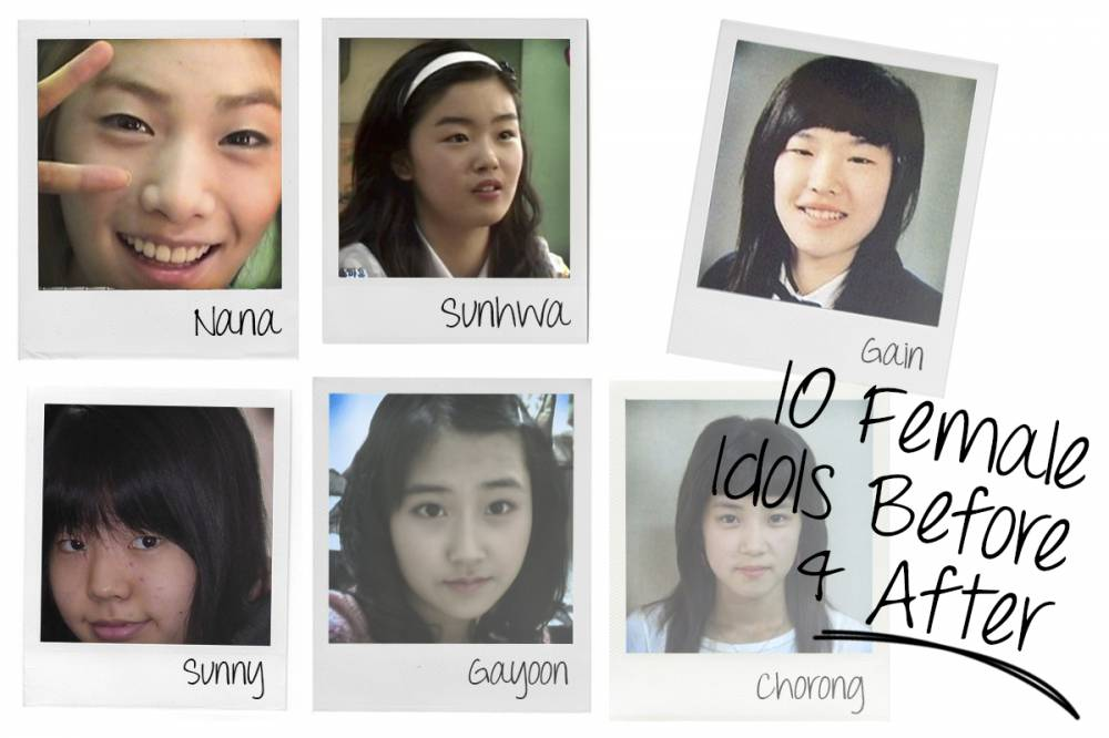 Korean Rapper Kasper Before And After Plastic Surgery photo - 1