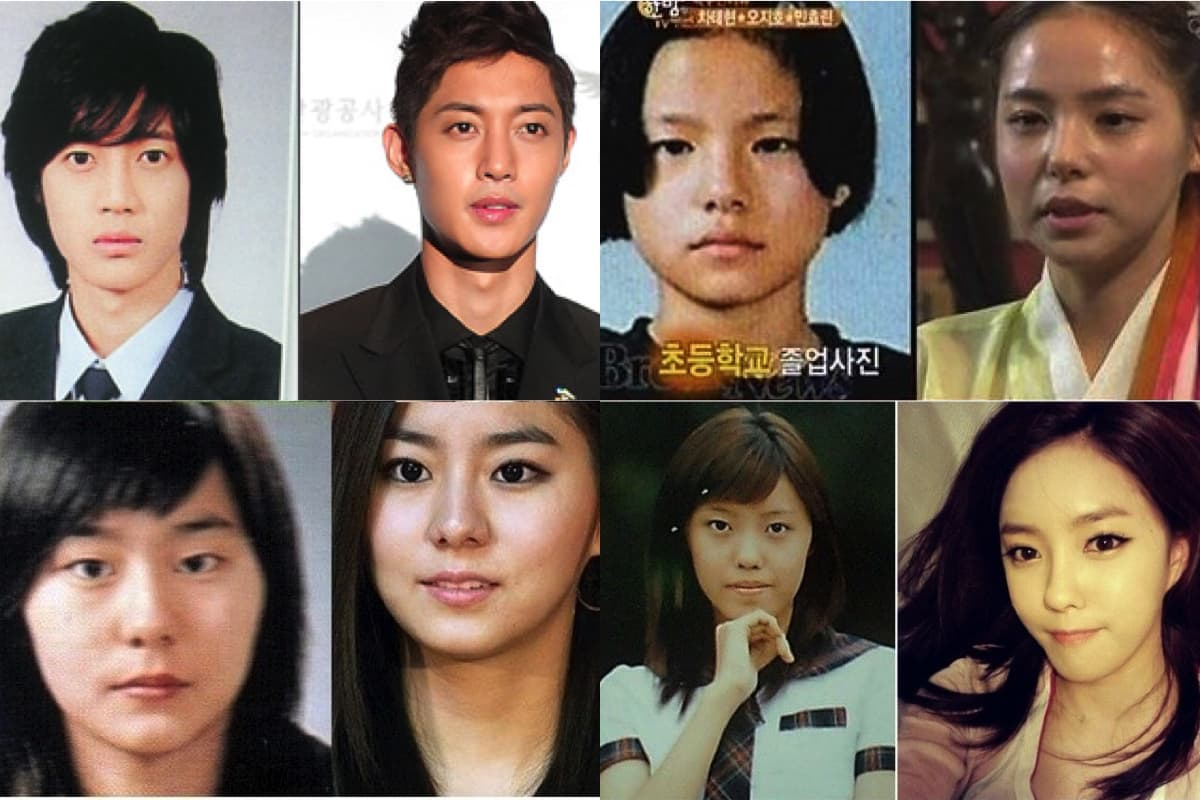 Korean Singers Before And After Plastic Surgery photo - 1