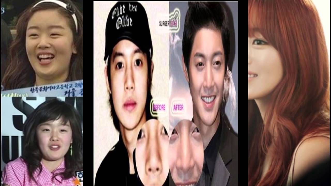 Korean Star Before And After Plastic Surgery photo - 1