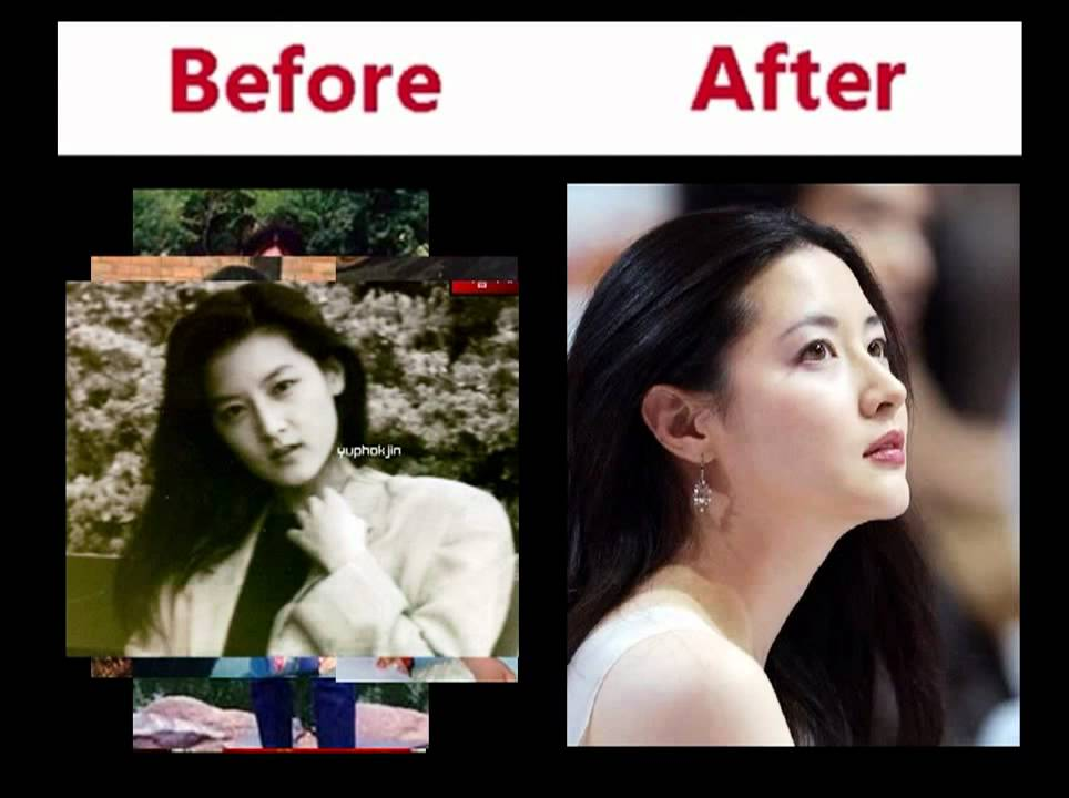 Korean Star Plastic Surgery Before And After photo - 1