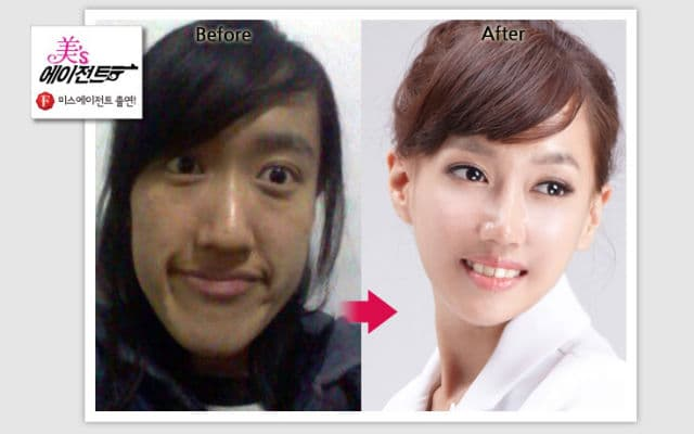 Korean Woman Plastic Surgery Before And After photo - 1