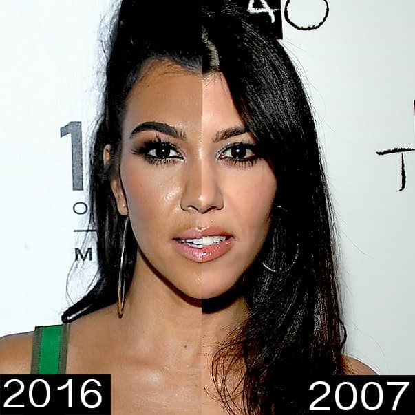 Kourtney Kardashian Before After Plastic Surgery photo - 1