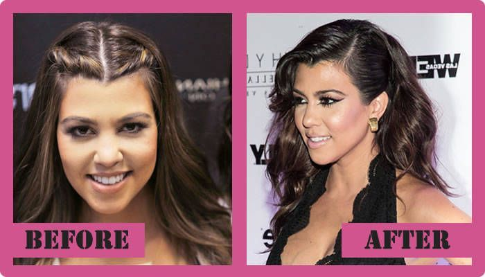 Kourtney Kardashian Plastic Surgery Before After photo - 1