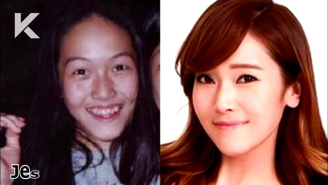 Kpop Idol Plastic Surgery Before After photo - 1