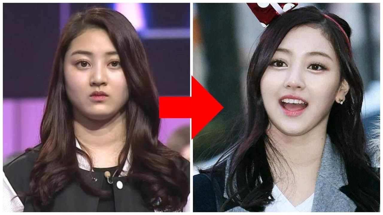 Kpop Idol Plastic Surgery Before And After Pictures photo - 1