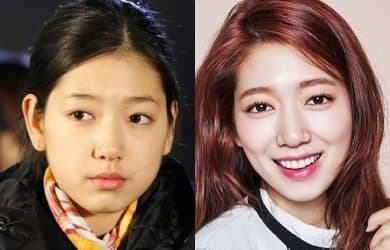 Kpop Stars Before Plastic Surgery photo - 1