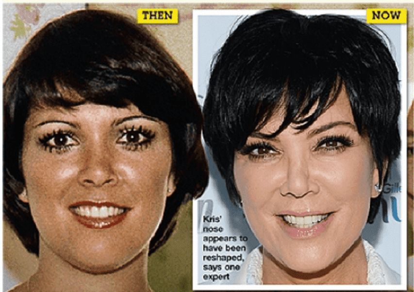 Kris Plastic Surgery Before And After photo - 1