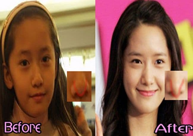 Krystal Before And After Plastic Surgery photo - 1