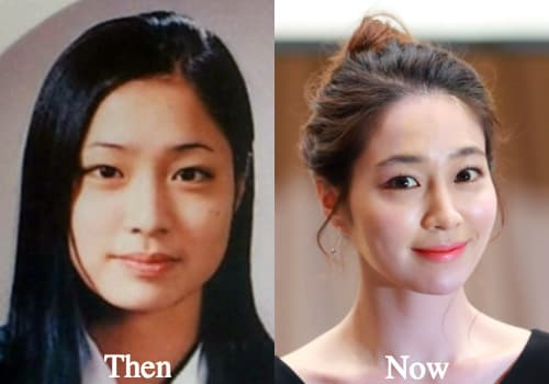Ku Hye Sun Before Plastic Surgery photo - 1