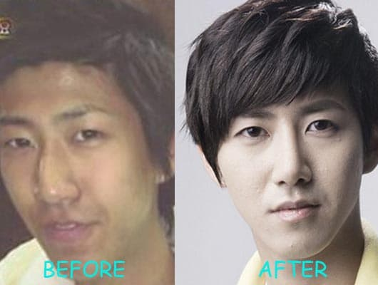 Kwanghee Plastic Surgery Before photo - 1