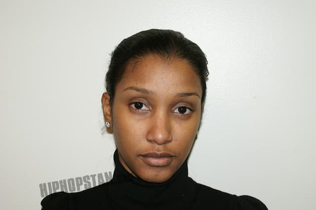 Kyra Chaos Before Plastic Surgery photo - 1