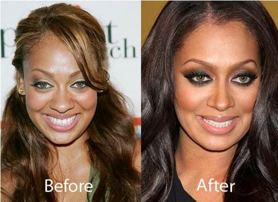 La La Anthony Before Plastic Surgery photo - 1