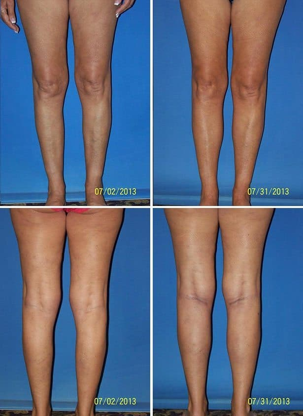 Labia Minora Plastic Surgery Before After photo - 1